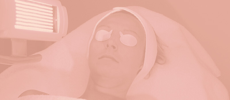 Fototerapia é eficaz no tratamento do vitiligo